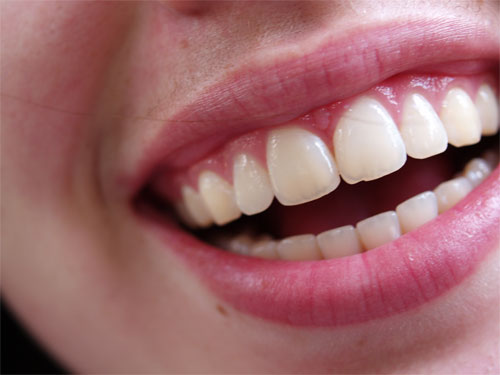 photoshop photo retouch make rotten teeth tutorial, Human Body